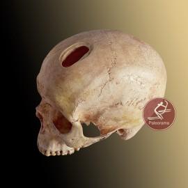 Cráneo trepanado neolítico
